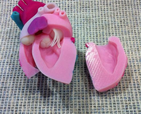 3D Printed Heart Model - Assembling 1