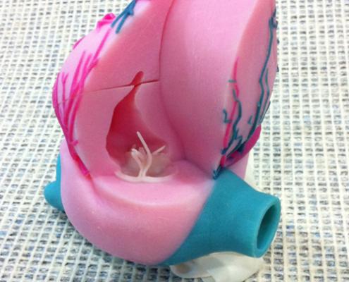 3D Printed Heart Model - Assembling 4